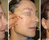 Le lifting facial non invasif: rôle du fil suspenseur