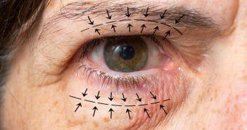 Champ visuel automatisé et prise en charge des blépharoplasties supérieures
