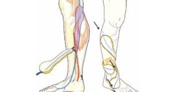 Les lambeaux perforants au membre inférieur: réalisation et principes du supercharging veineux